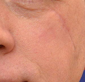 IPL® Photofacial Treatment Before & After Photos in Dayton, OH